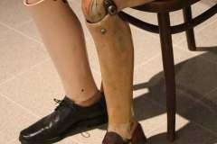 hdf-limbs
