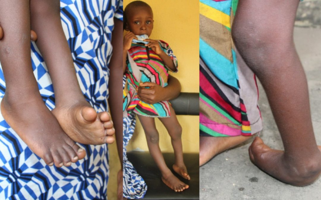 Excellent Undergoes Clubfoot Correction Procedures
